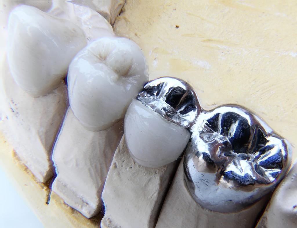 Dental bridge connecting crowns on teeth